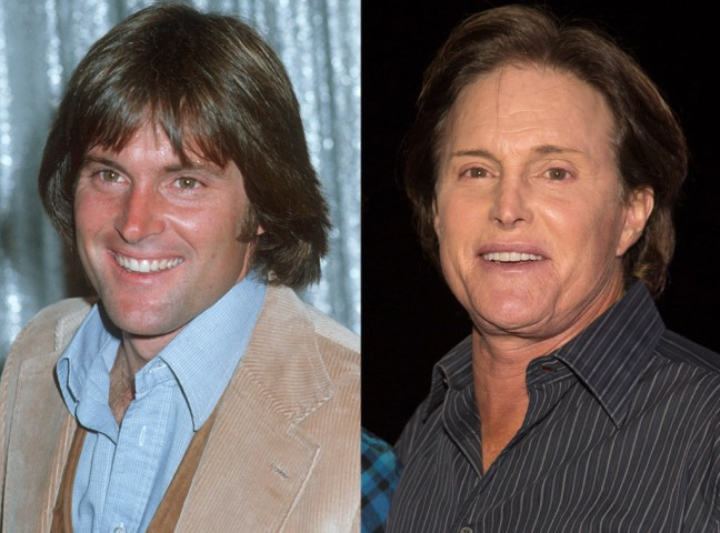 rs_1024x759-130912145605-1024-bruce-jenner-plastic-surgery.ls.91213_copy_2