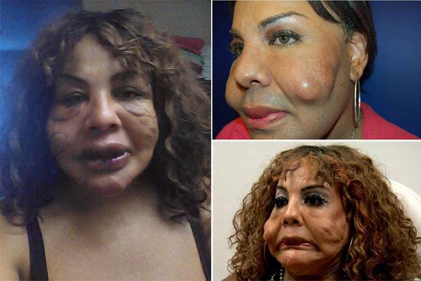 متحولة جنسية يتم حقن وجهها بالاسمنت