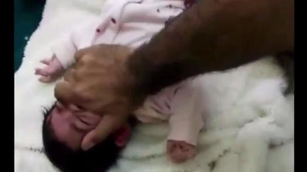 الطفلة السعودية المعنفة